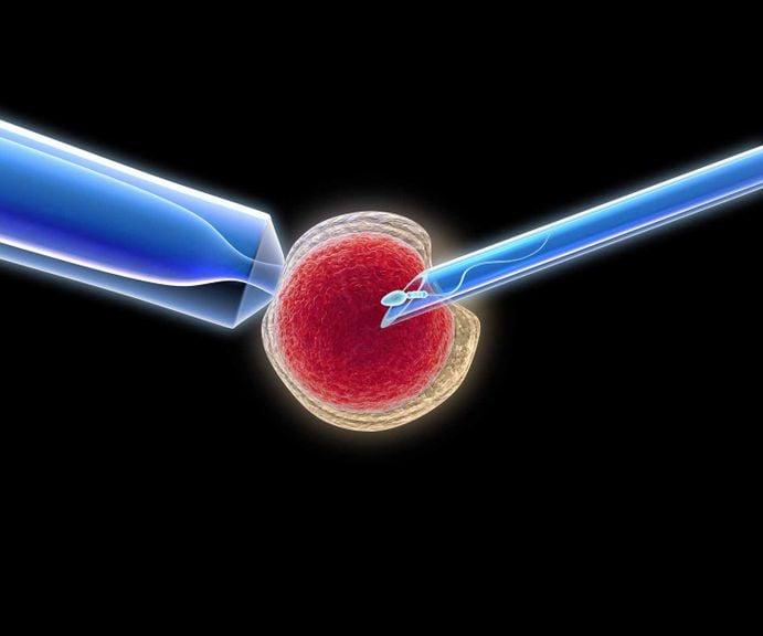 icsi, künstliche Befruchtung, Spermien werden in Eizell injiziert