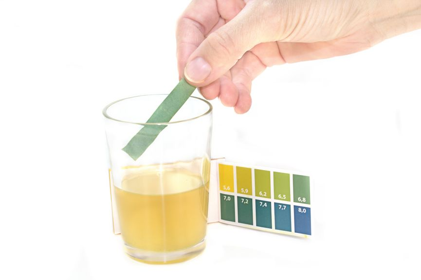 Teststreifen,Urin-Test
