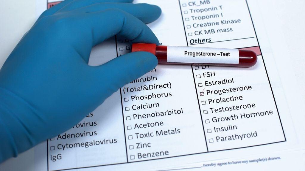 Laborblatt und Blutröhrchen