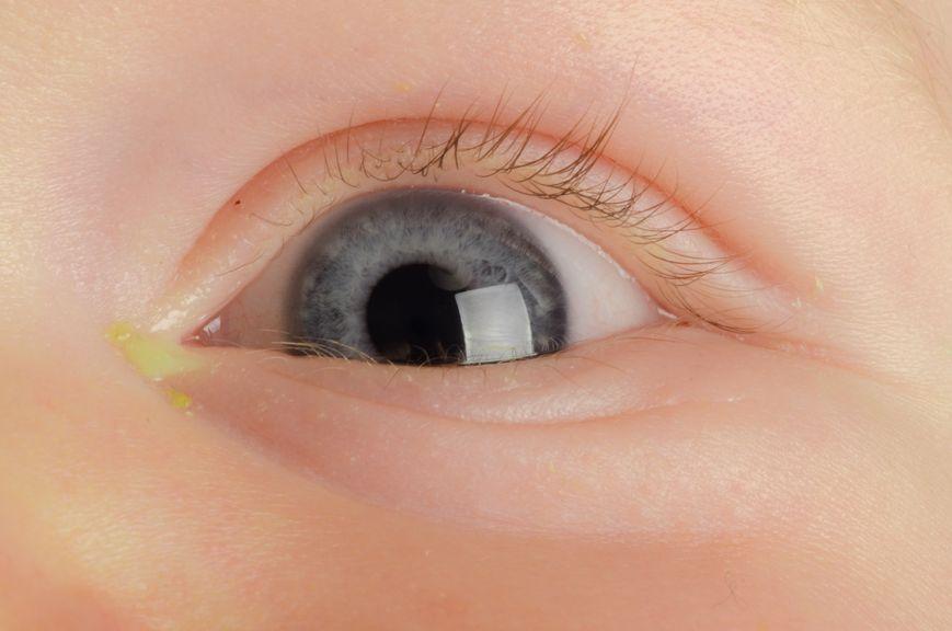 gerötetes Auge, Bindehautentzündung