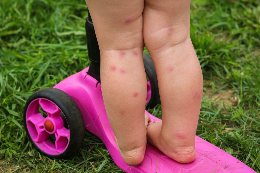 Kind mit Insektenstichen an den Beinen