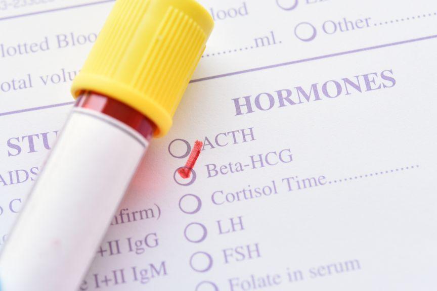 Röhrchen mit Blut und Laborformular für hCG test