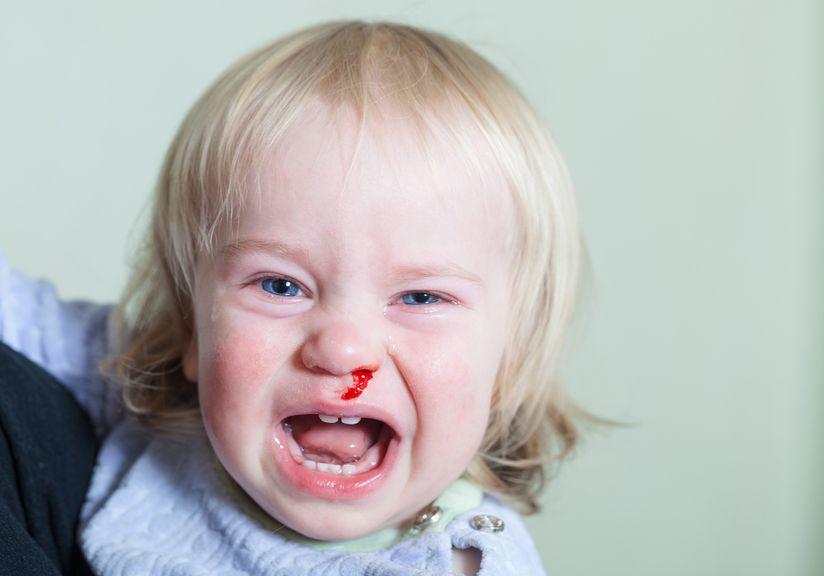 Kind läuft Blut aus der Nase