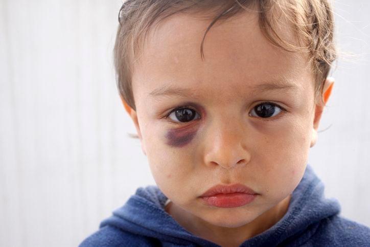 Kind mit blauem Auge
