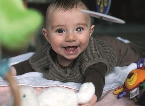 ein Baby, auf dem Bauch liegend, mit Retinoblastom