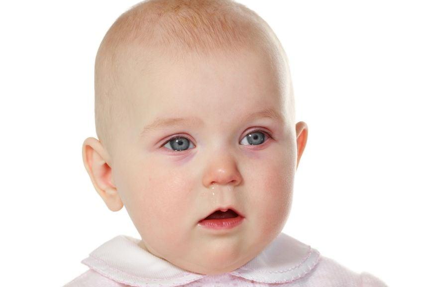 laufende Nase beim Baby