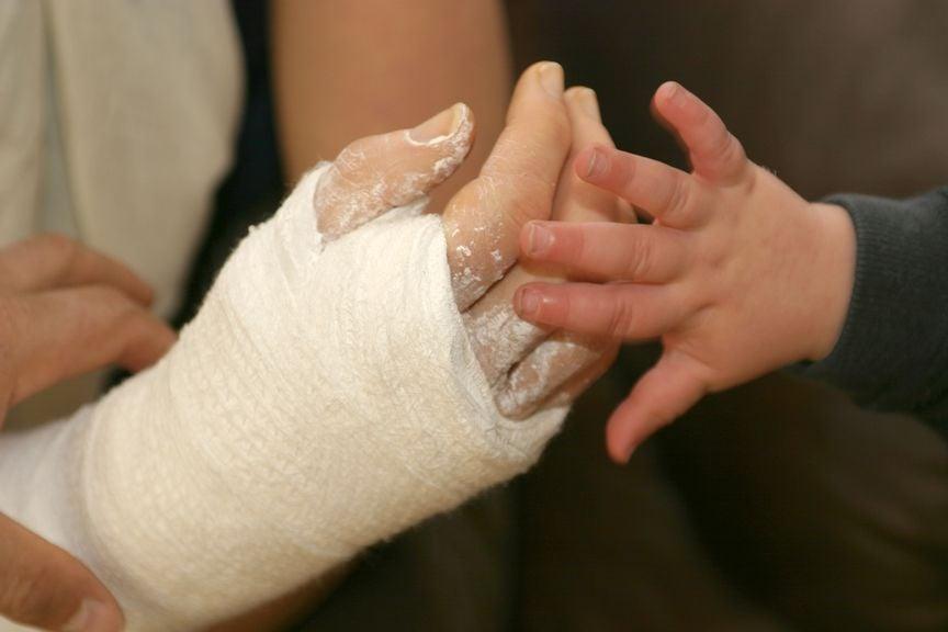 Hand im Gips mit Babyhand