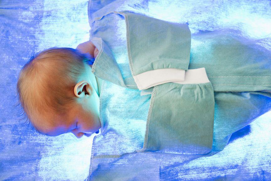 Fototherapie bei einem Neugeborenen