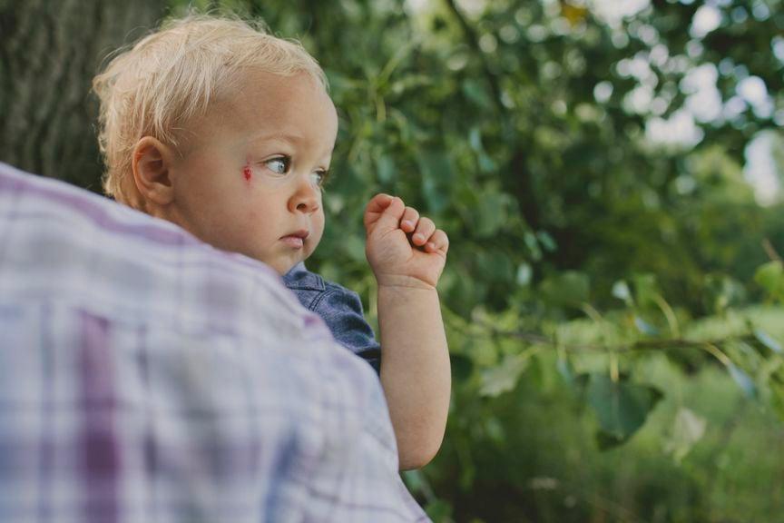 Kind mit Verletzung neben dem Auge
