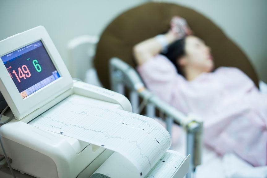 Schwangere am Wehenschreiber