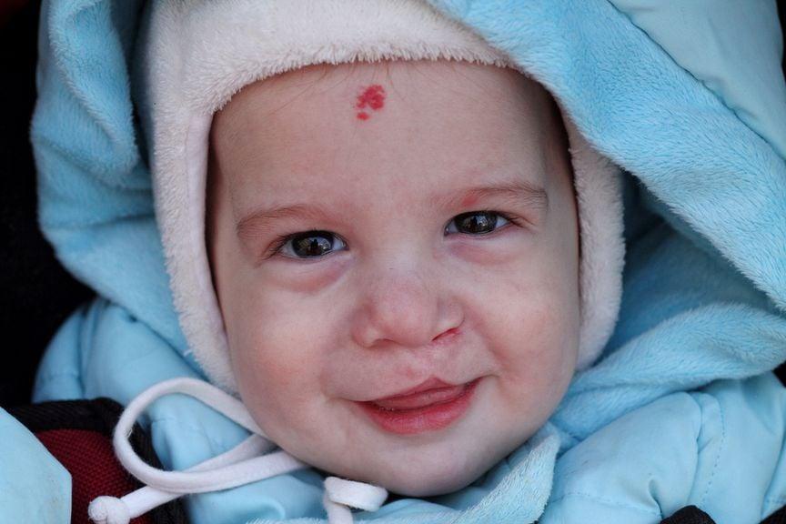 Kind mit operierter Lippenspalte