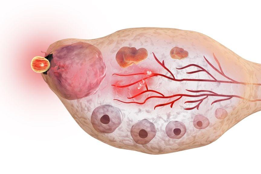 Ovulation im weiblichen Eierstock,Weiblicher Eierstock,Eisprung