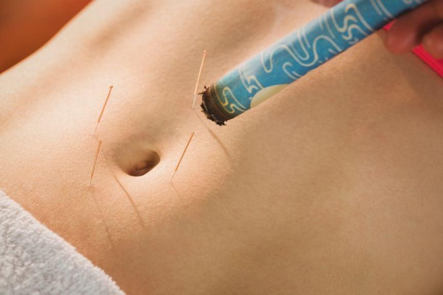 Bauch mit Akupunkturnadeln und Moxakegeln