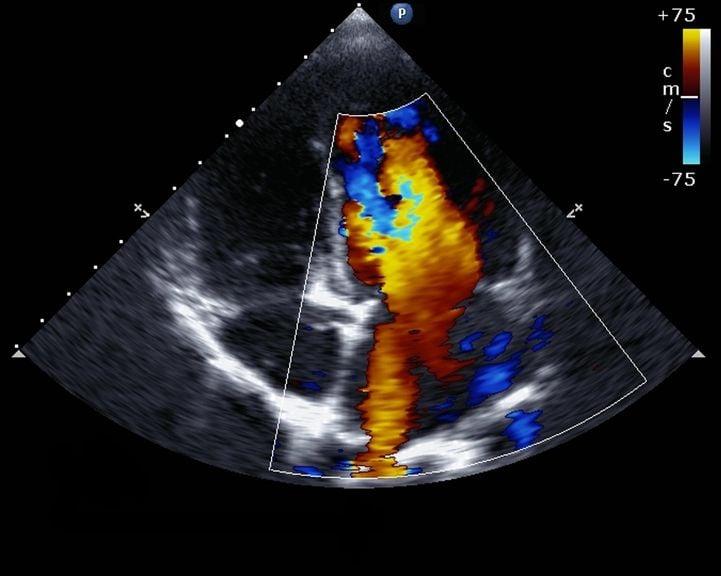 Doppler Echocardiographie
